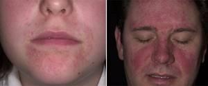 Бактериальный дерматит у человека