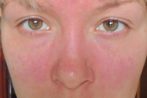 Аллергия на коже сыпь