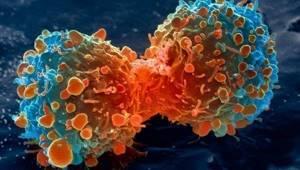 Рак на нервной почве