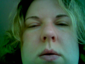Гомеопатия аллергия