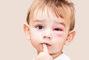 Аллергия на ванилин у ребенка