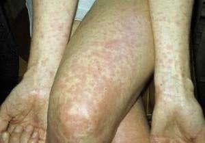 Крапивница после антибиотиков лечение