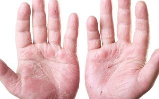Средства от дерматита на руках