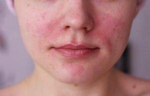 Аллергия на помаду