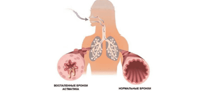 Прибор для астматиков