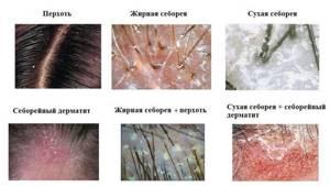 Шампунь себорейный дерматит