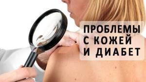 Шелушение кожи на шее