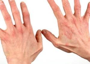 Есть ли аллергия на йоркширских терьеров