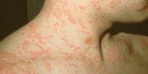 Аллергические пятна