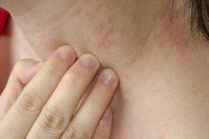 Причины крапивницы у взрослых как лечить