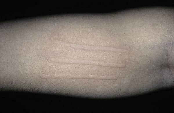 Аллергия крапивница что делать