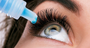 Чешутся глаза у ребенка аллергия что делать