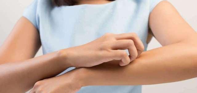 Лечение экземы при беременности