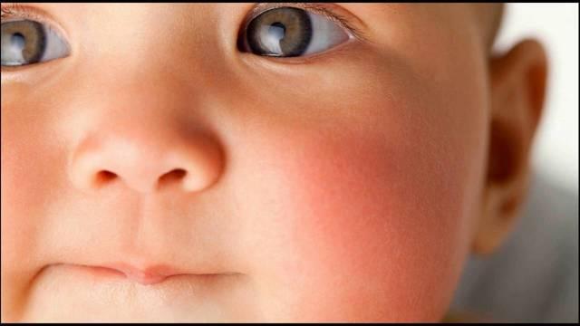 У ребенка аллергия на коровий белок