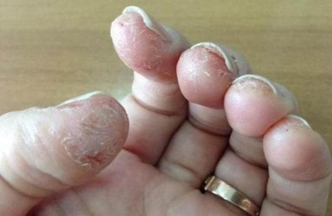 Как вылечить аллергию на шеллак