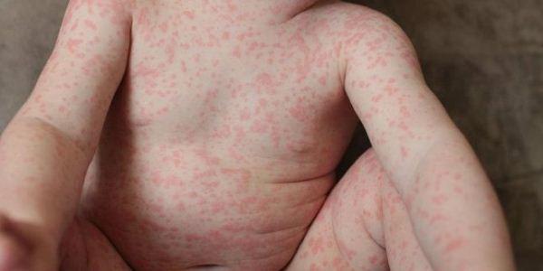 Аллергия после