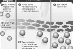 Лечение при аллергии кожи с зудом