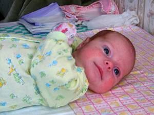 Аллергия на молочные продукты у ребенка