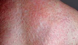 Аллергия на креветки