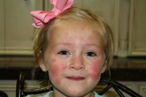 Как выглядит аллергическая сыпь у детей