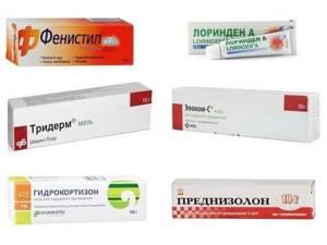 Чем лечить контактный дерматит