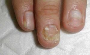 Как вылечить аллергию на гель лак