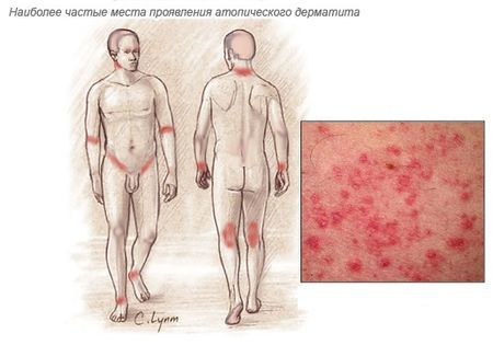 Лавровый лист при дерматите