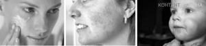 Мазь от аллергии на лице