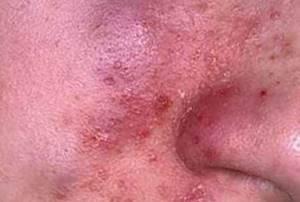 Церебральный дерматит