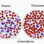 Аллергия на кефир у взрослых симптомы