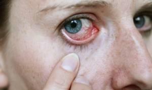 Глаза чешутся и краснеют лечение