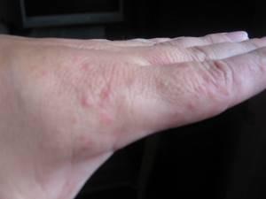 Сыпь на руках в виде пузырьков лечение
