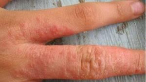 Аллергия после антибиотиков