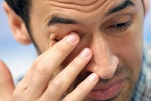 Отек глаза лечение