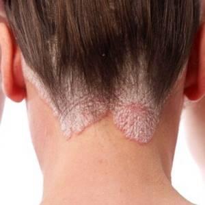 Аллергия на голове