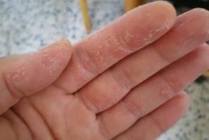 Мокнущая экзема на руках и пальцах рук
