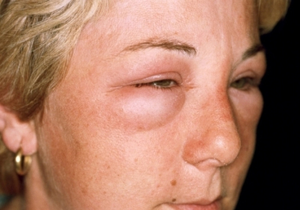 Отек при аллергии