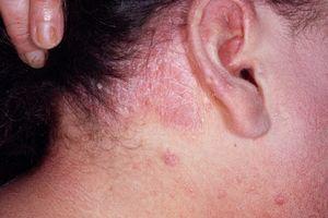 Аллергия на рис у грудничка