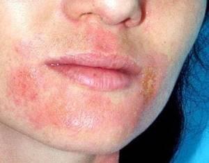 Маска от аллергии