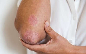 Аллергия высыпания