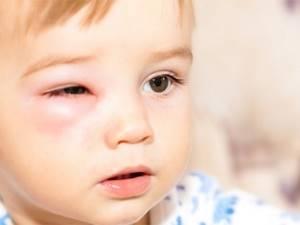 Аллергия на ромашку симптомы