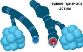 Как определить бронхиальную астму у взрослого