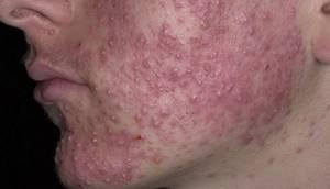 Себорейный дерматит заразен
