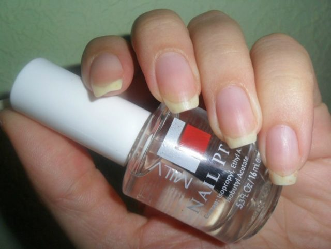 Аллергия на обезжириватель для ногтей