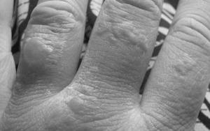 Аллергия волдыри на руках