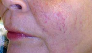 Может ли болеть горло при аллергии