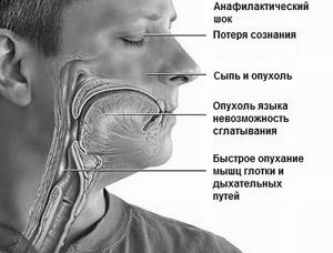 Анафилактический шок что это такое симптомы