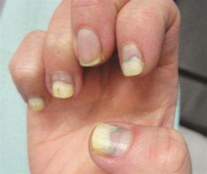После покрытия гель лаком чешутся пальцы