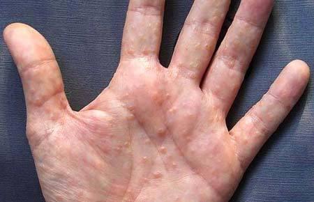 Высыпания на руке