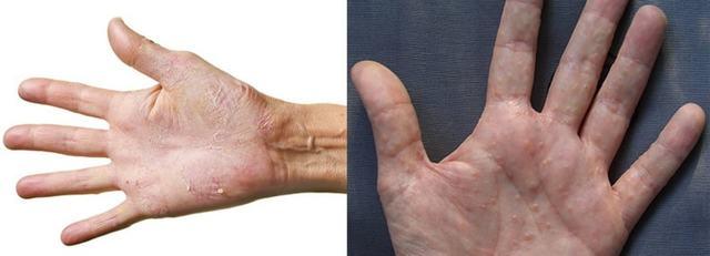 Аллергия на гель лак чем заменить